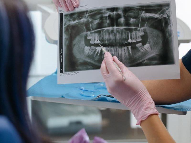Czy w Polsce produkowane są doskonałe aparaty ortodontyczne?